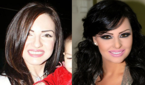 Diana Karazon vs  Wafaa Soltan